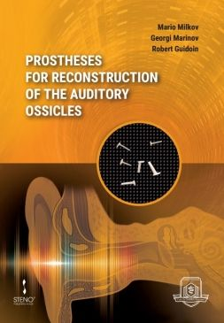 Prostheses for Reconstruction of the Auditory Ossicles